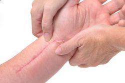 comment attenuer les cicatrices